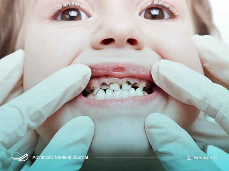 پوسیدگی در دندان های شیری