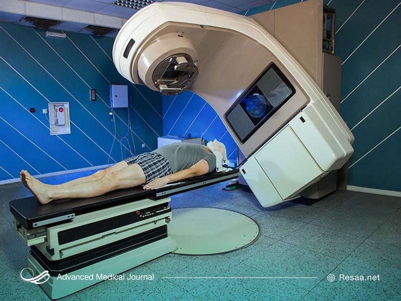 پرتودرمانی برای درمان سرطان روده