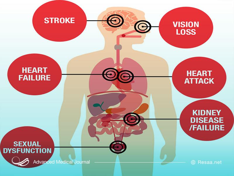 فشار خون بالا چه عوارضی دارد