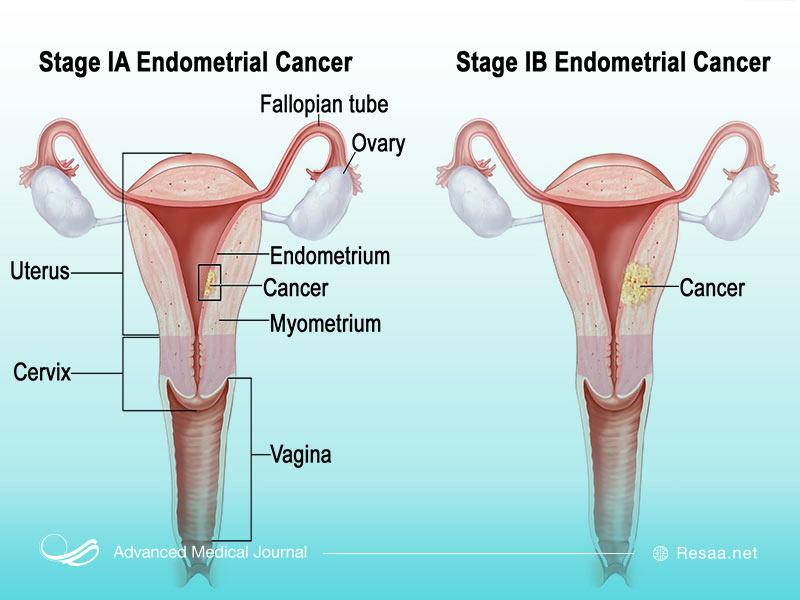 درجات و مراحل مختلف سرطان رحم
