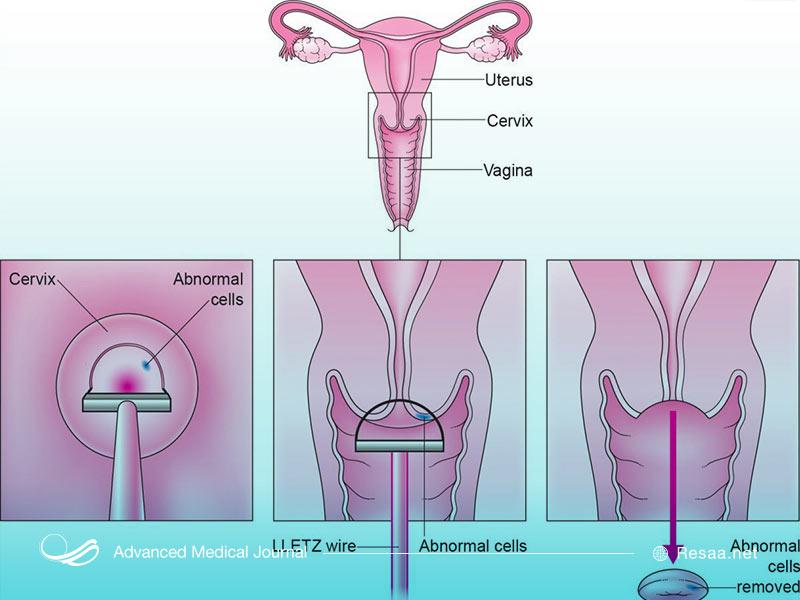 جراحی های مربوط به سرطان رحم مواردی مثل سرویکس یا کورتاژ هستند.