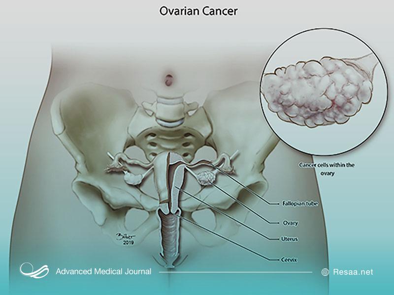 بیماری سرطان تخمدان را بشناسید