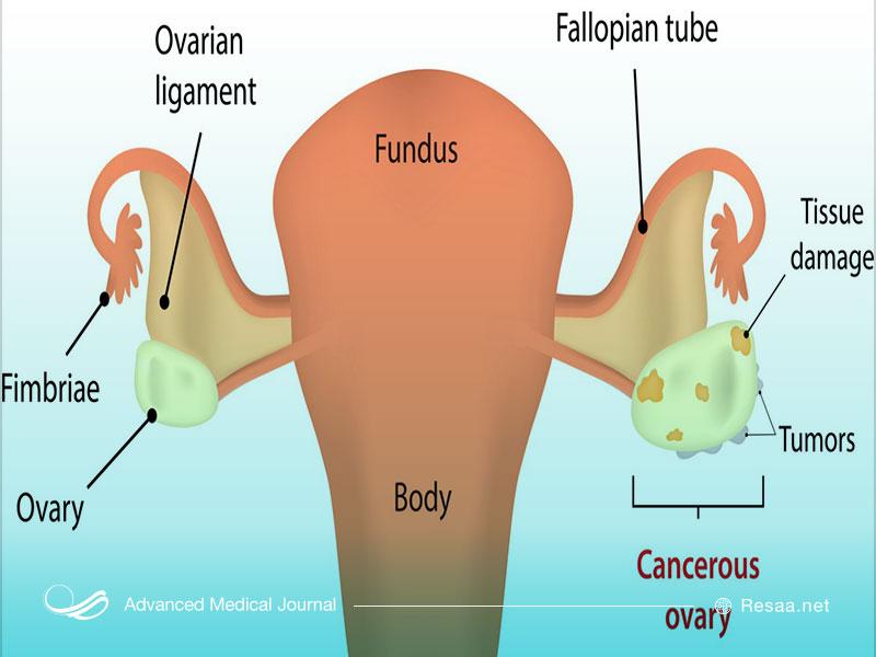 تخمدان درگیر بیماری سرطان