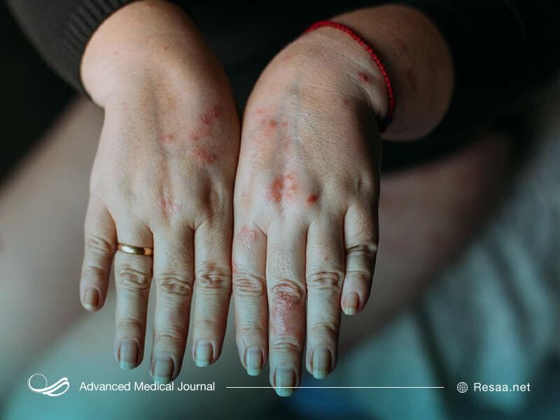 اگزمای پوست دست