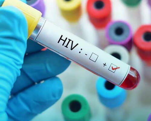 ایدز چیست و چگونه از آن پیشگیری کنیم