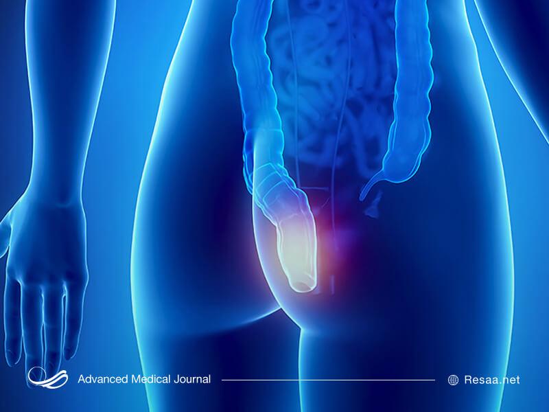فیشر در اثر آسیب به کانال روده و مقعد ایجاد می شود.