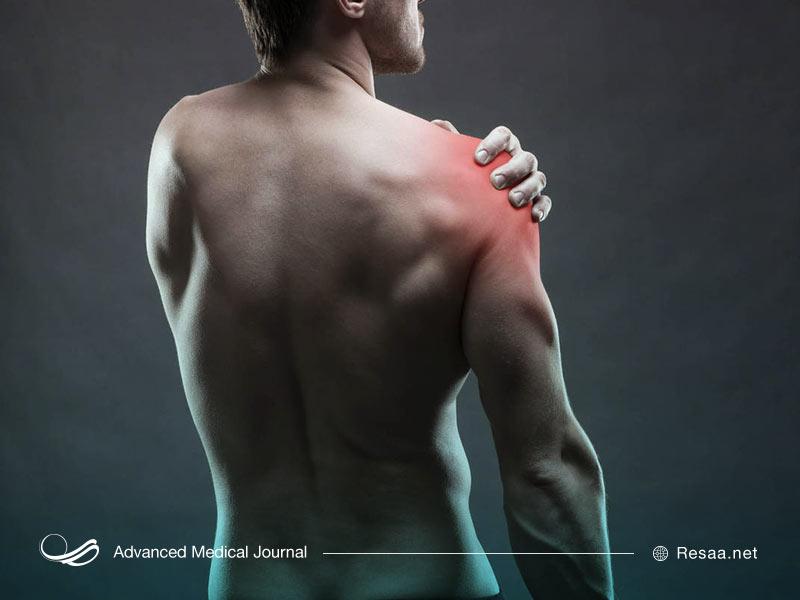 ساییدگی عضلات باعث درد بازو میشود.