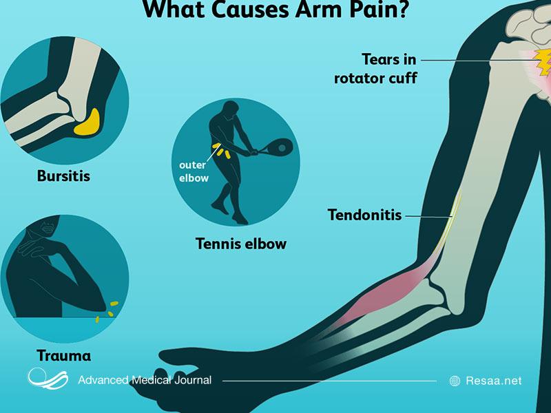 عوامل مختلفی در ایجاد درد بازو نقش دارند.