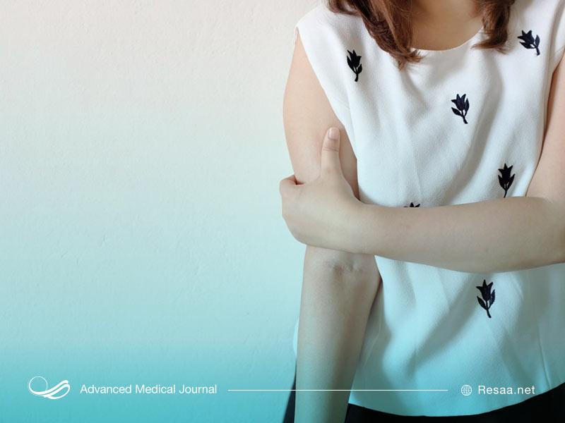 برای تشخیص منبع درد بازو ممکن است نیاز به MRI داشته باشید.
