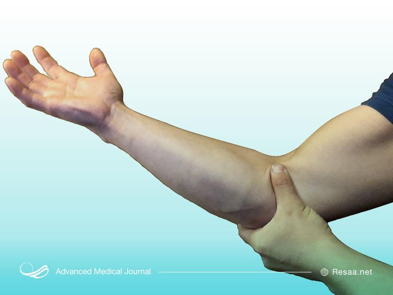 همراه با درد بازو ممکن است سفت شدن عضلات را نیز تجربه کنید.