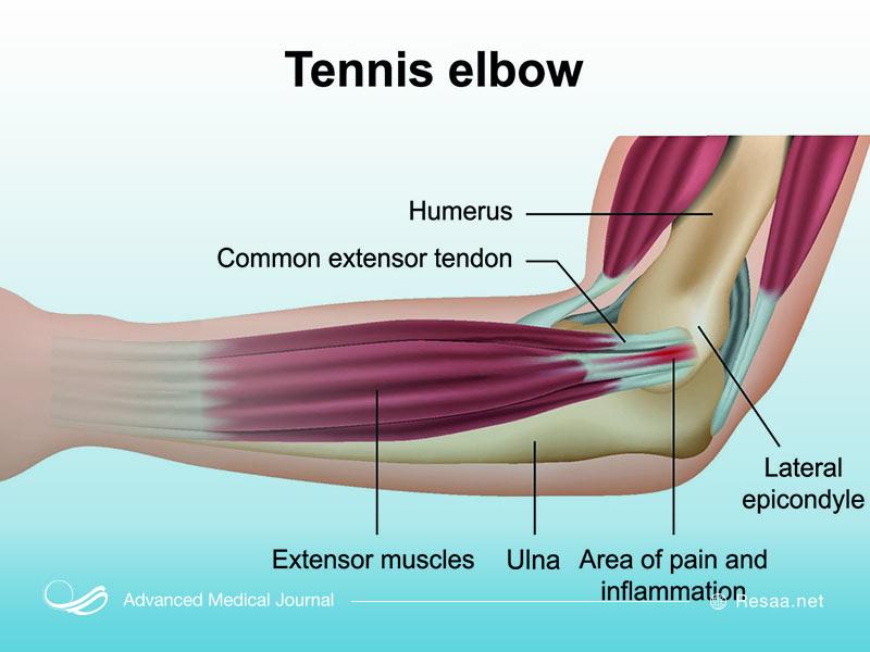 تنیس آرنج بازان یکی از عوامل بازو درد میباشد.