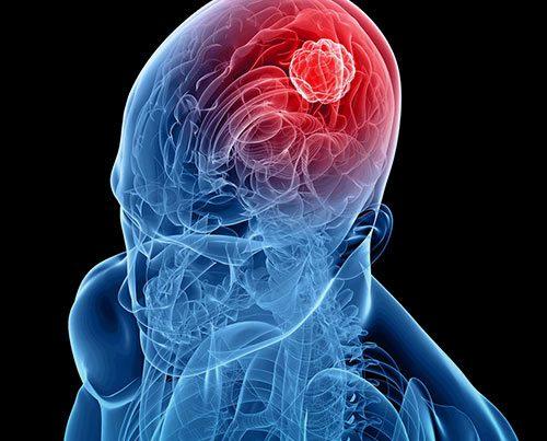 سرطان و تومورهای مغزی را بشناسیم