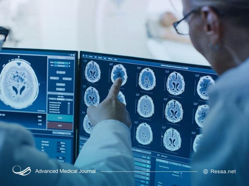 علائم سرطان و تومور مغزی