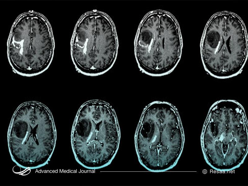 پرتو درمانی برای معالجه سرطان مغز