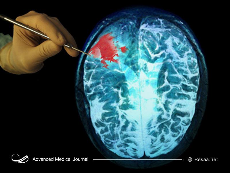 نقش مغز در بدن انسان چیست