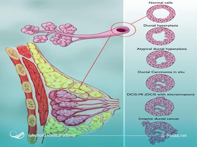 انواع سرطان پستان