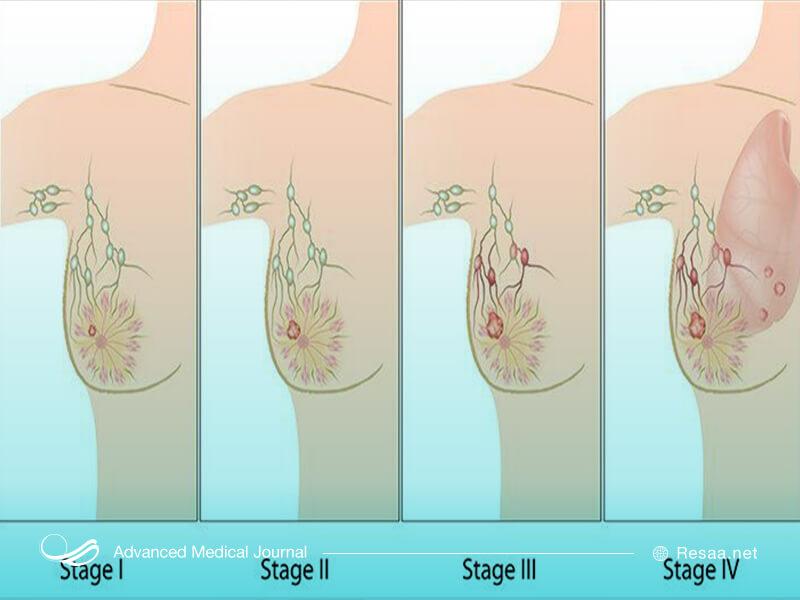 مراحل سرطان پستان
