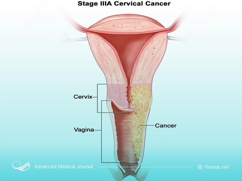 شناخت بیماری سرطان دهانه رحم
