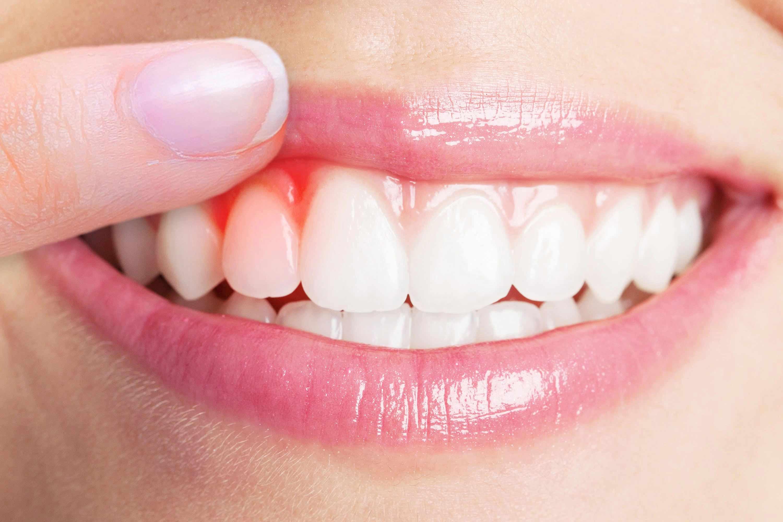 بیماری آبسه دندان چیست؟ علائم و درمان آبسه دندان