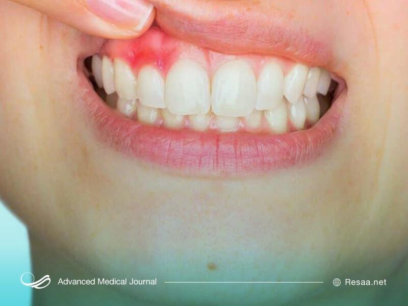 بیماری آبسه دندان