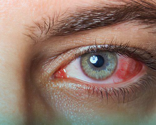 سرطان چشم،علایم و درمان
