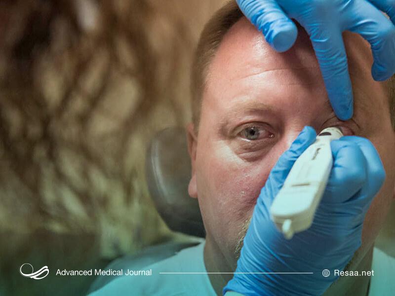 معاینه چشم به منظور تشخیص سرطان چشم