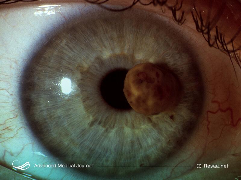 اگر توده ای در قرنیه چشم خود مشاهده کردید باید به پزشک برای معاینات بیشتر مراجعه نمایید.