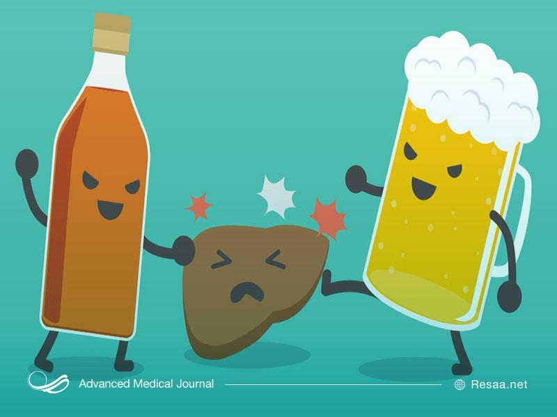 کبد چرب الکلی