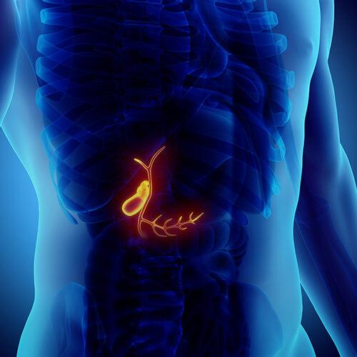 سرطان کیسه صفرا،علایم و درمان