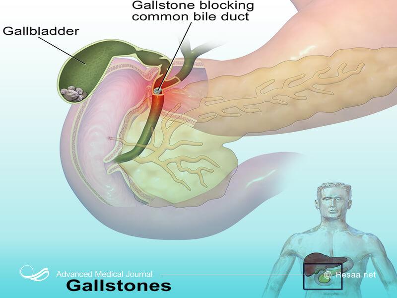 پزشک به منظور تشخیص بیماری معاینه بدنی انجام میدهد.