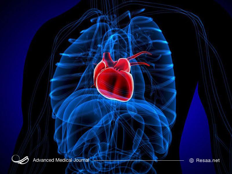 روش جراحی برای درمان سرطان قلب