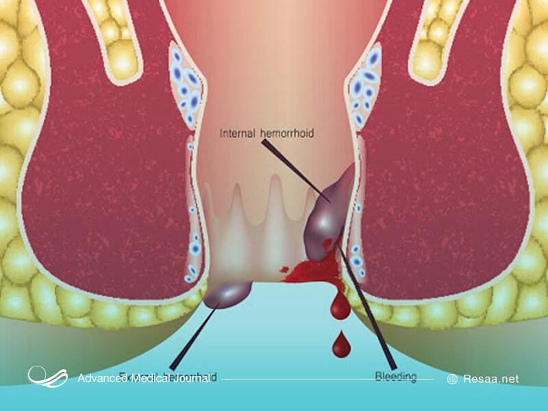 بیماری بواسیر از خونریزی رگهای ناحیه مقعدی ناشی میشود.
