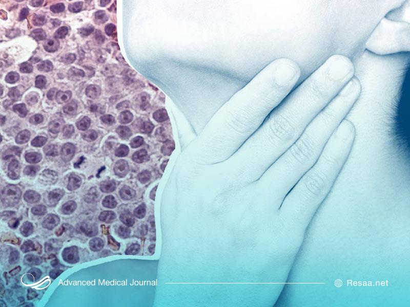 عوامل خطر در سرطان خون