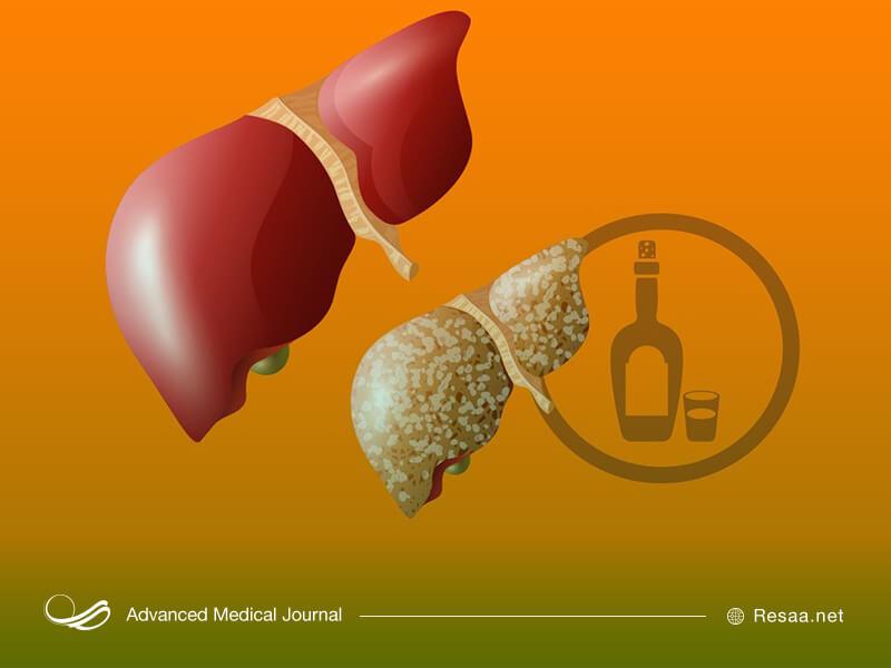 مصرف الکل و مواد غذایی ناسالم سبب تحریک کبد می شوند