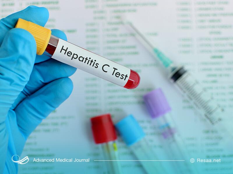 برای تشخیص بیماری هپاتیت باید آزمایش خون انجام شود.