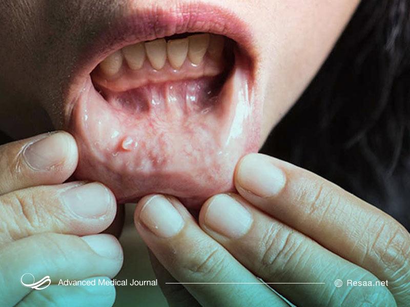 سرطان دهان چیست و چگونه ایجاد میشود؟