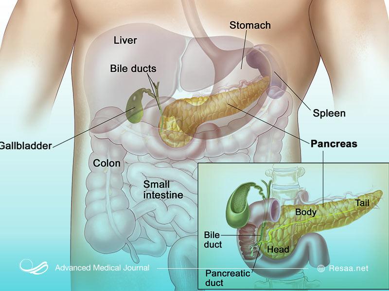 سرطان پانکراس چیست؟