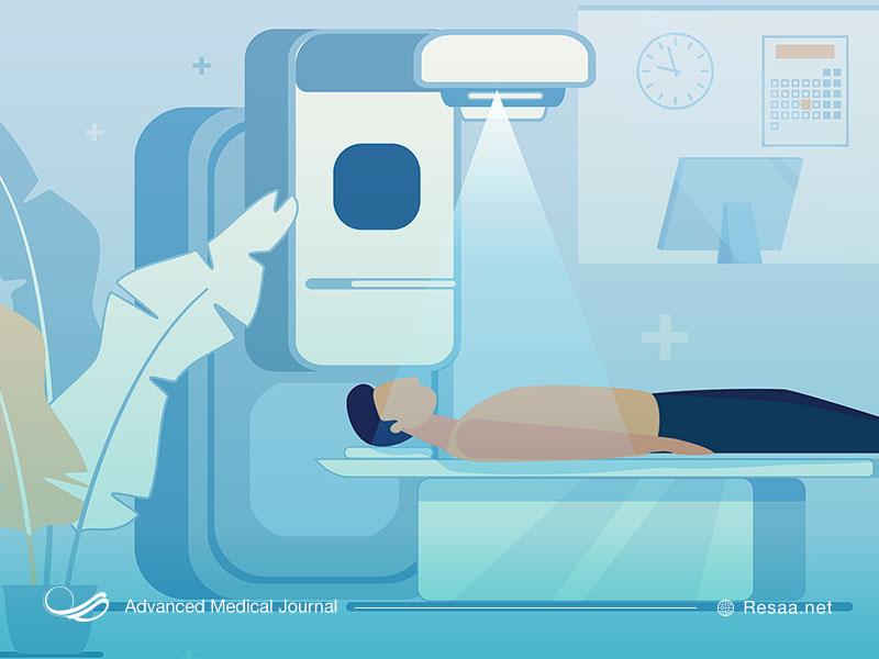 پرتو درمانی به منظور از بین بردن سرطان پانکراس