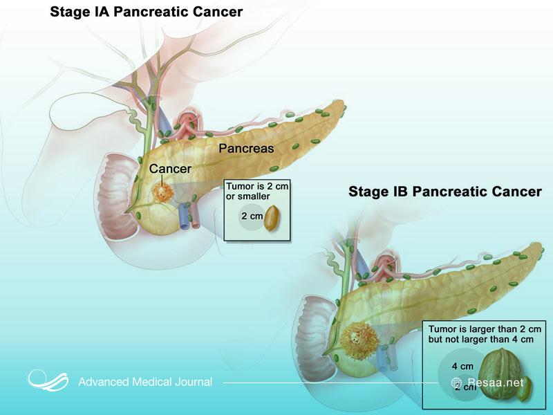 مراحل سرطان پانکراس