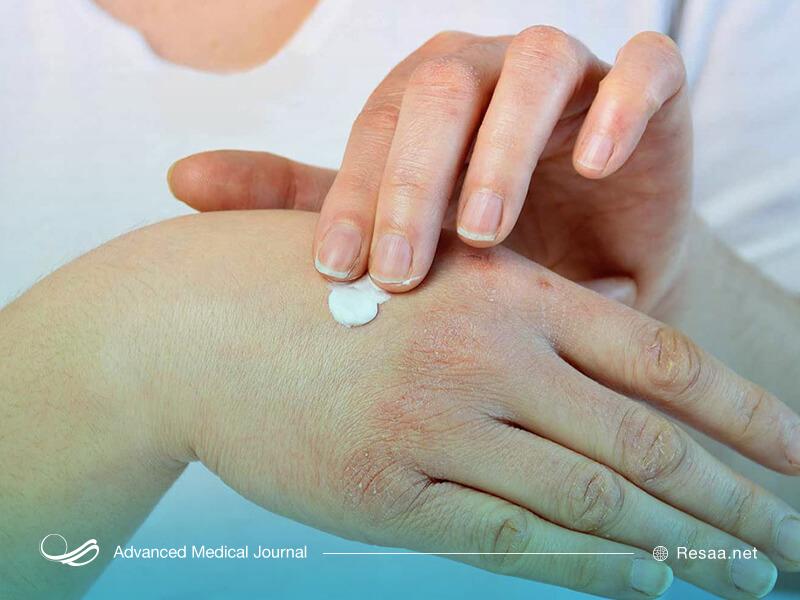 استفاده از مرطوب کننده برای پوست
