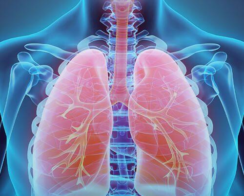 فیبروز ریه چیست