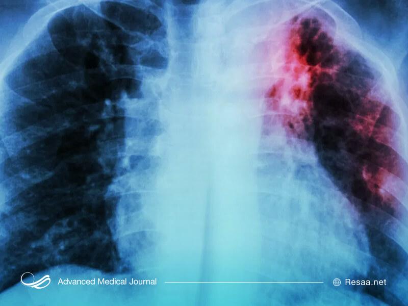 بیماری فیبروز ریه چیست و چه علایمی دارد ؟