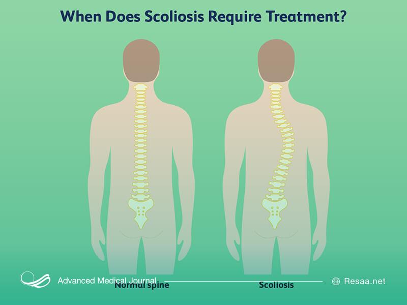 انواع اسکولیوز