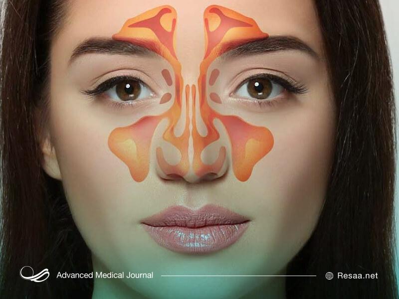 سینوزیت ممکن است در اثر آلرژی ایجاد شود.