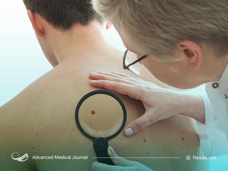 سرطان پوست چگونه شروع میشود