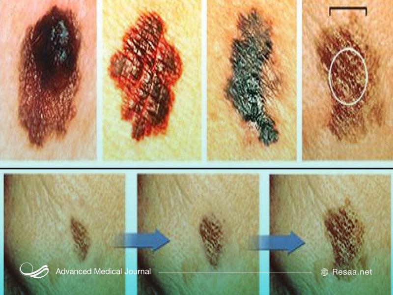 انواع لکه های پوستی دیگر