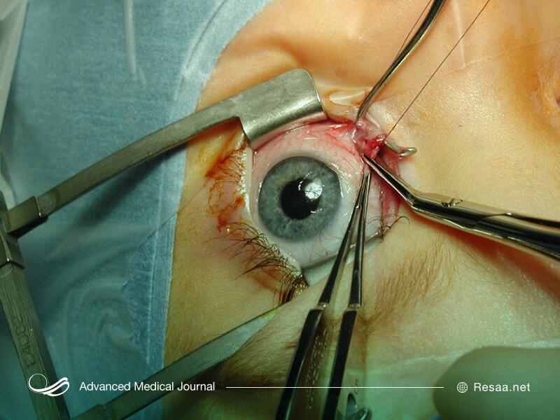 عمل جراحی برای درمان انحراف چشم