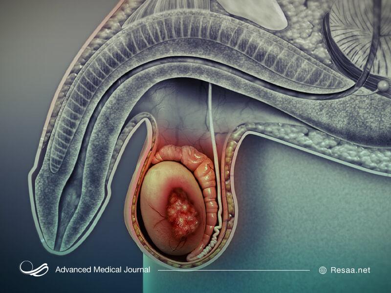 سرطان بیضه چگونه ایجاد میشود