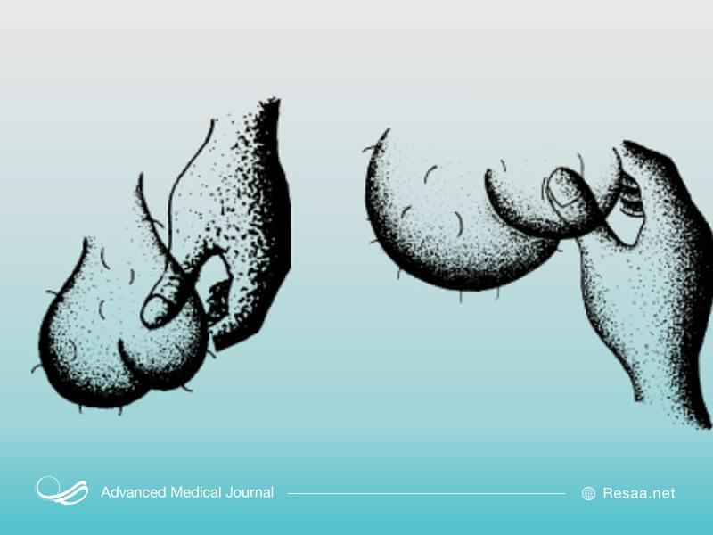 تصویر معاینه جسمی بیضه ها