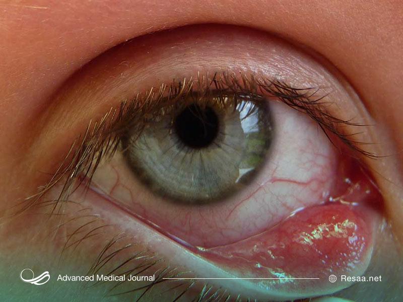 باقی ماندن ارایش چشم میتواند در بروز گل مژه موثر باشد.